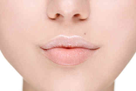 VG Medispa - 0.55ml Juvéderm lip plump dermal filler treatment and consultation - Save 73%