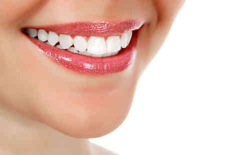 Chelsea Dental Spa - Clear Six Month Smiles brace on one or both arches - Save 68%