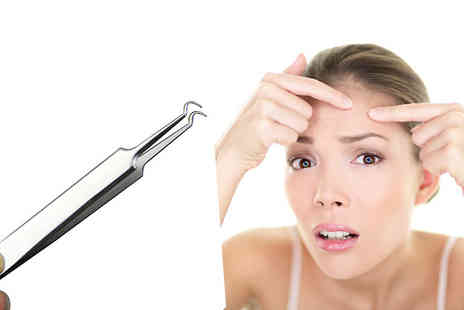 Orchid Deal - Stainless Steel Blackhead Extractor Tool - Save 0%