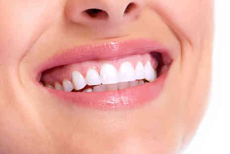 Maple Dental Clinic - One porcelain veneer or two veneers - Save 45%