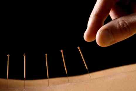 West London Osteopathy - One or Three Acupuncture Treatments - Save 77%