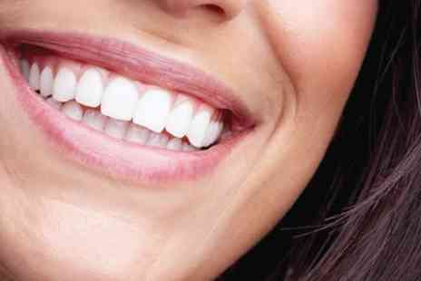 All Saints Dental Clinic - Choice of Braces for One or Two Arches Plus Home Teeth Whitening Kit - Save 61%
