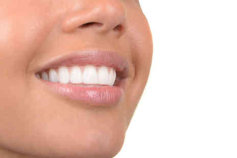 5D Lipo - Teeth whitening session - Save 40%