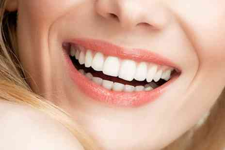 Ambience Dental Practice - Laser Teeth Whitening with a Dental Check Up and X Rays - Save 70%