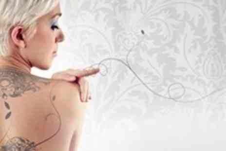 I'm Beautiful - Two laser tattoo removal sessions on 2x2 tattoo area - Save 70%