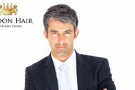 Hair Transplant Clinic - FUE hair transplant treatment with 500 grafts with 1000 grafts - Save 65%