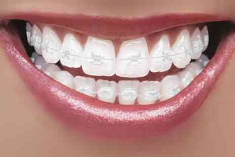 Dental Care - Clear Braces for One or Two Arches - Save 65%