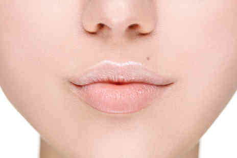 VG Medispa - 0.55ml Juvederm lip plump dermal filler treatment and consultation - Save 73%