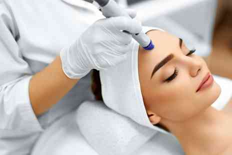 Neo Beauty - One session of Diamond Microdermabrasion - Save 60%