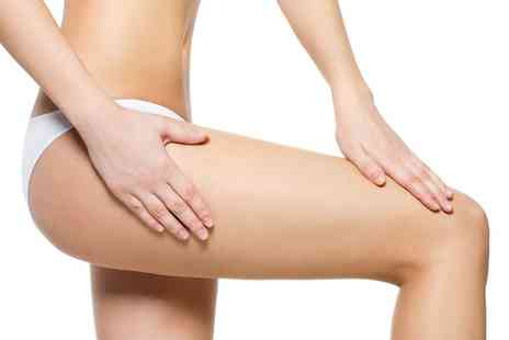 Canterbury Cosmetics - One or Two Sessions of Cryogenic Lipolysis - Save 74%