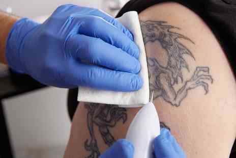 My body essentials - Two or Four Sessions of Laser Tattoo Removal on Small or Medium Area - Save 80%