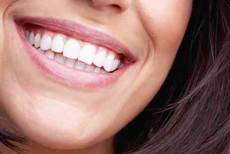 Shades Clinic - Up to Six Composite Veneers - Save 54%
