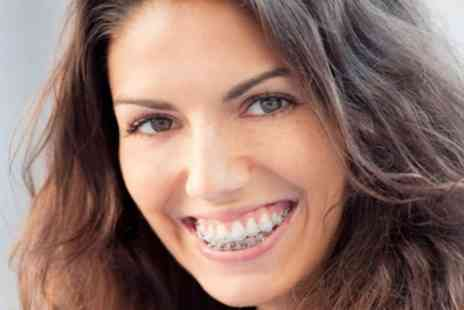 iDental - Clear Braces for One or Two Arches with Fixed Retainers - Save 65%