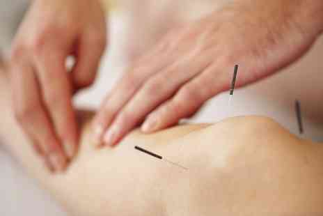 Anytime Fitness Gym Onsite Physiotherapist - One Hour Acupuncture Session - Save 0%