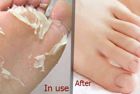 Hawt Online - Exfoliating Foot Socks - Save 80%