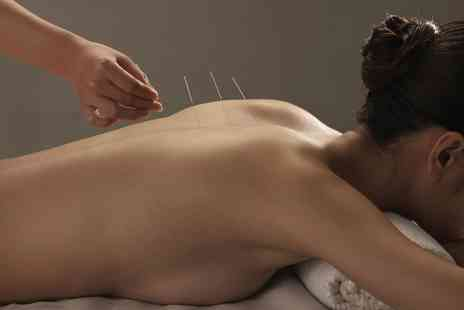 Hans Acupuncture - One or Two Acupuncture Sessions with Optional Massage, Reflexology or Cupping - Save 62%