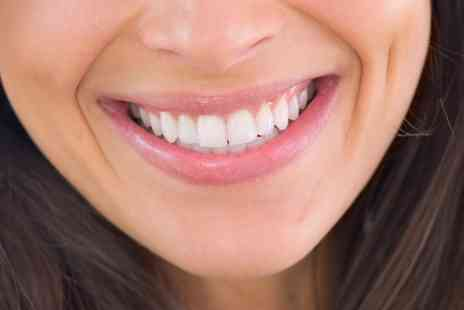 Dental Perfection - Two, Four or Six Dental Veneers - Save 0%