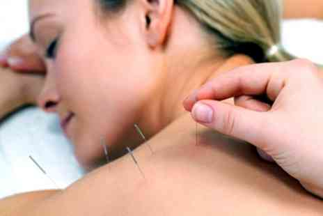 Eastern Buddha Treatments - One or Two 60 Minute Acupuncture or Cupping Treatments with Consultation - Save 58%