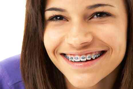 Circus House Dental - Fastbraces For Upper and Lower Arches with Retainer - Save 63%