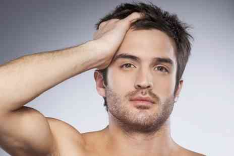 The Hair Growth Centre - Hair Transplant with 1,000, 2,000, or 3,000 Hairs - Save 47%