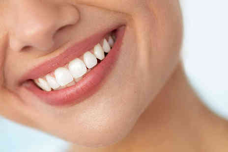 VidaDent Dental Practice - Laser teeth whitening treatment with dental consultation and check up - Save 81%