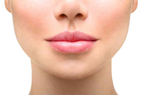 The Body Stylists - 0.5ml or 1ml of dermal filler on lips or perioral lines - Save 57%
