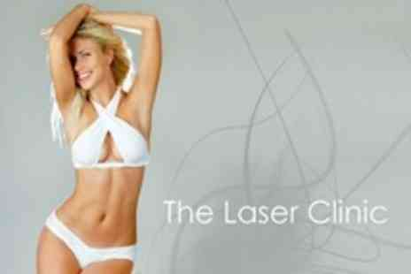 The Laser Clinic - Six Sessions of IPL Hair Removal on One Medium Area - Save 38%