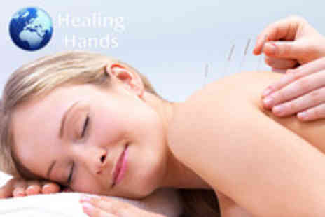 Healing Hands - 45 minute consultation & acupuncture session - Save 72%