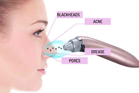 Black Sheep - 4 in 1 Pore Cleansing Blackhead Vacuum Choose 2 Colours - Save 63%