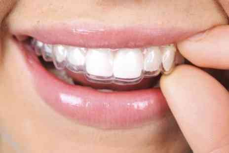 Bright Smiles Dental Clinic - Clear Aligners with Teeth Whitening for One or Two Arches - Save 54%