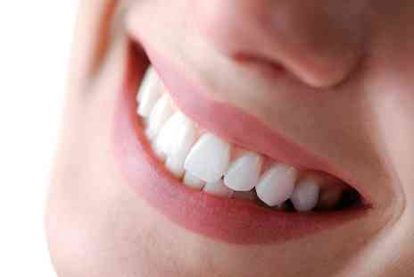 Smiles by Hillside - Dental Clean, Scale and Polish with Optional Dental Check Up and X Ray - Save 62%