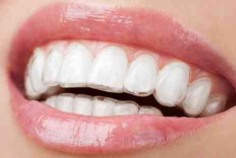 Lister House Dental Clinic - Clear Dental Aligners for Upper Arch, Lower Arch or Both - Save 61%