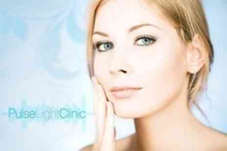 Pulse Light Clinic - Two IPL Facial Thread Vein Removal Sessions Plus Biodermabrasion - Save 73%