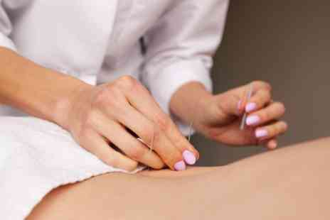 Natures Way Chinese Herbal Medicine - Massage and Acupuncture for One or Two - Save 65%