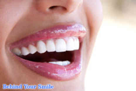 Behind Your Smile - An Inman Aligner clear brace - Save 60%
