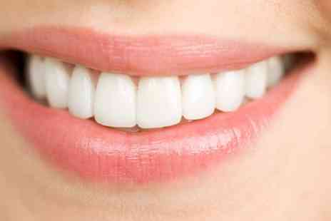 Warwick Road Dental - Up to Six Dental Composite Veneers - Save 0%