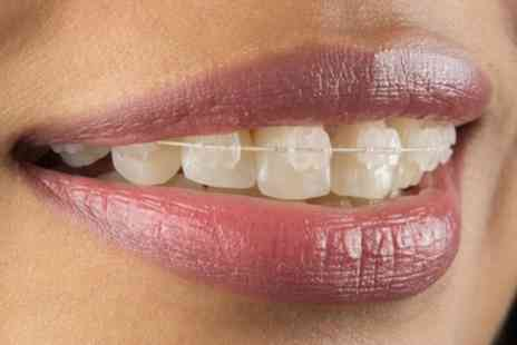 a b c smile - Clear Braces for One or Two Arches with Removable Retainers and Optional Teeth Whitening - Save 52%