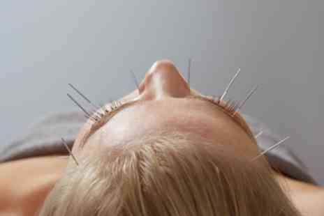 Moonflower Spa - Two Sessions of Acupuncture or Cupping - Save 67%