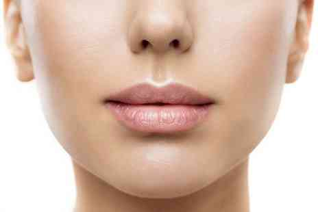Viva Laser and Aesthetics - 0.5ml Juvederm dermal filler treatment - Save 70%
