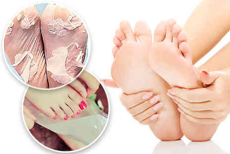 Forever Cosmetics - Two peeling and exfoliating foot masks - Save 93%