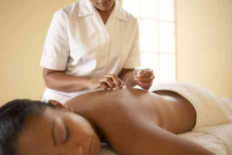 MA Health and Wellbeing - 45 Minute Acupuncture with Consultation and Optional Tui Na - Save 49%