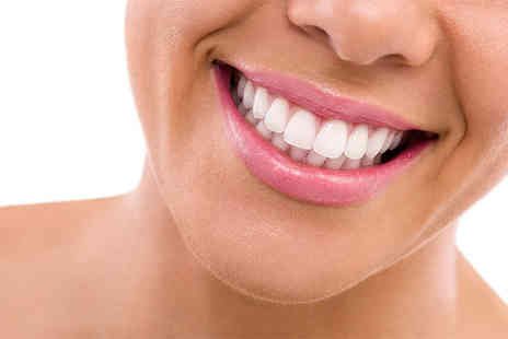Queensway Dental Practice - Porcelain veneer for one, two, four or six - Save 62%