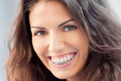 iDental - Clear Braces for One or Two Arches with Fixed Retainers - Save 70%