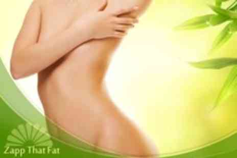Zapp That Fat - Laser Lipolysis Four Sessions - Save 70%