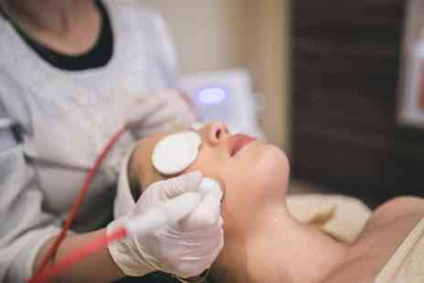 Mellow Willow Beauty - One or Three Sessions of Microdermabrasion - Save 58%