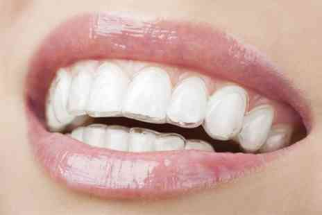 Urgent Dental Practice - Pure Smile Invisible Braces for One or Both Arches - Save 0%