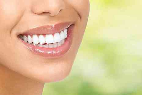 Bright Smiles Dental Clinic - Two veneers with any necessary x rays and trays or to include four veneers and a home teeth whitening kit - Save 70%