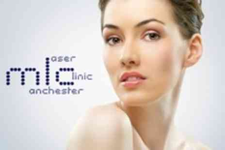 Manchester Laser Clinic - Two Treatments For Dark Circles Under the Eyes - Save 81%