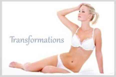 Transformations - Six Sessions of Laser Hair Removal on Two Small Areas Such as Upper Lip - Save 92%