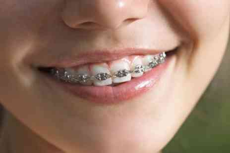 VidaDent - Metal Dental Braces for One or Both Arches - Save 67%